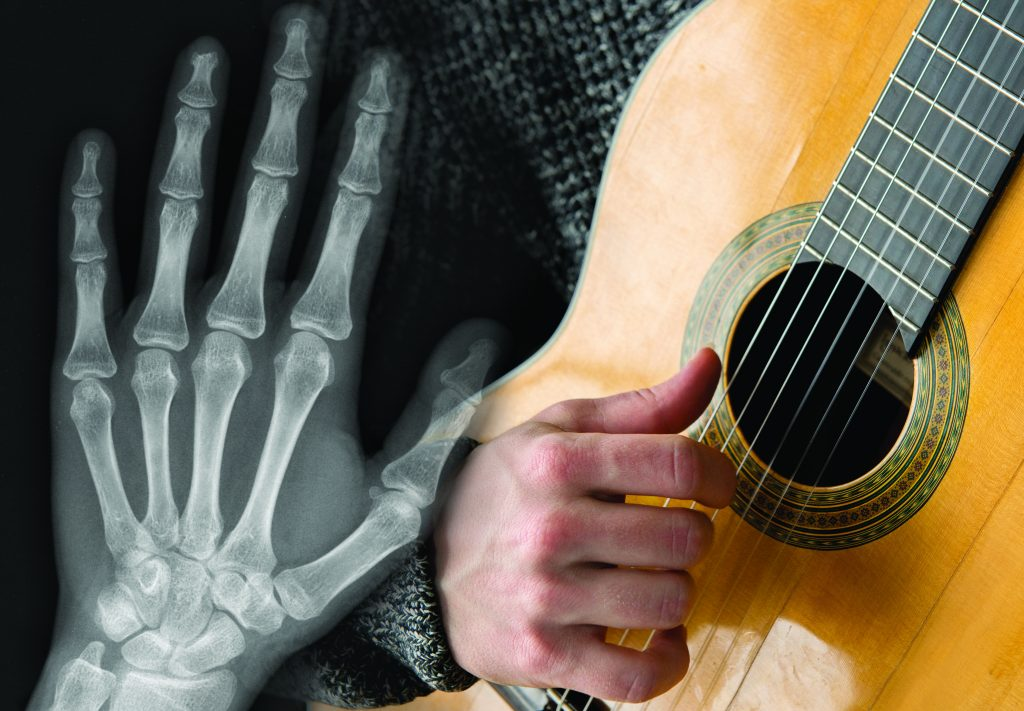 X-ray of hand and guitar